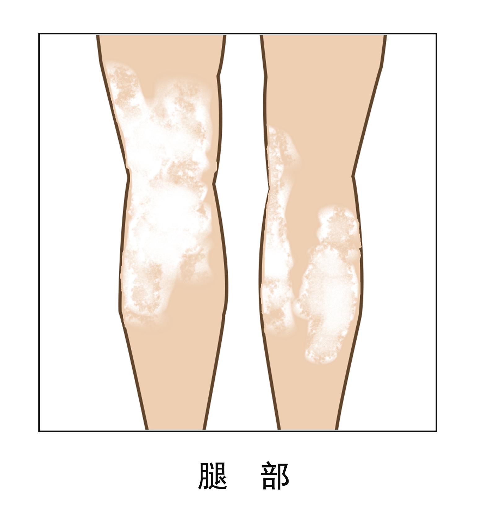 昆明白癜风医院简介:白癜风在腿脚出现该怎么办