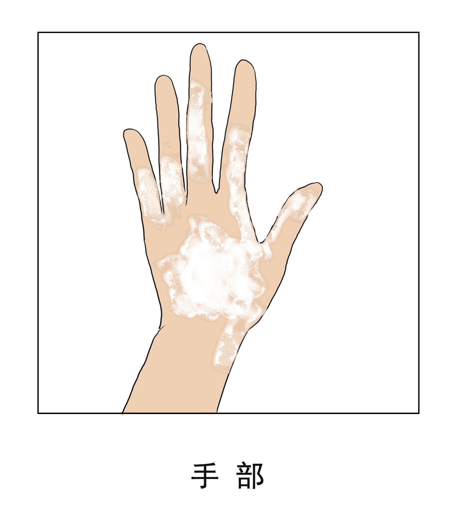 昆明护国路治疗白斑李作梅专业:手部白癜风是怎么形成的