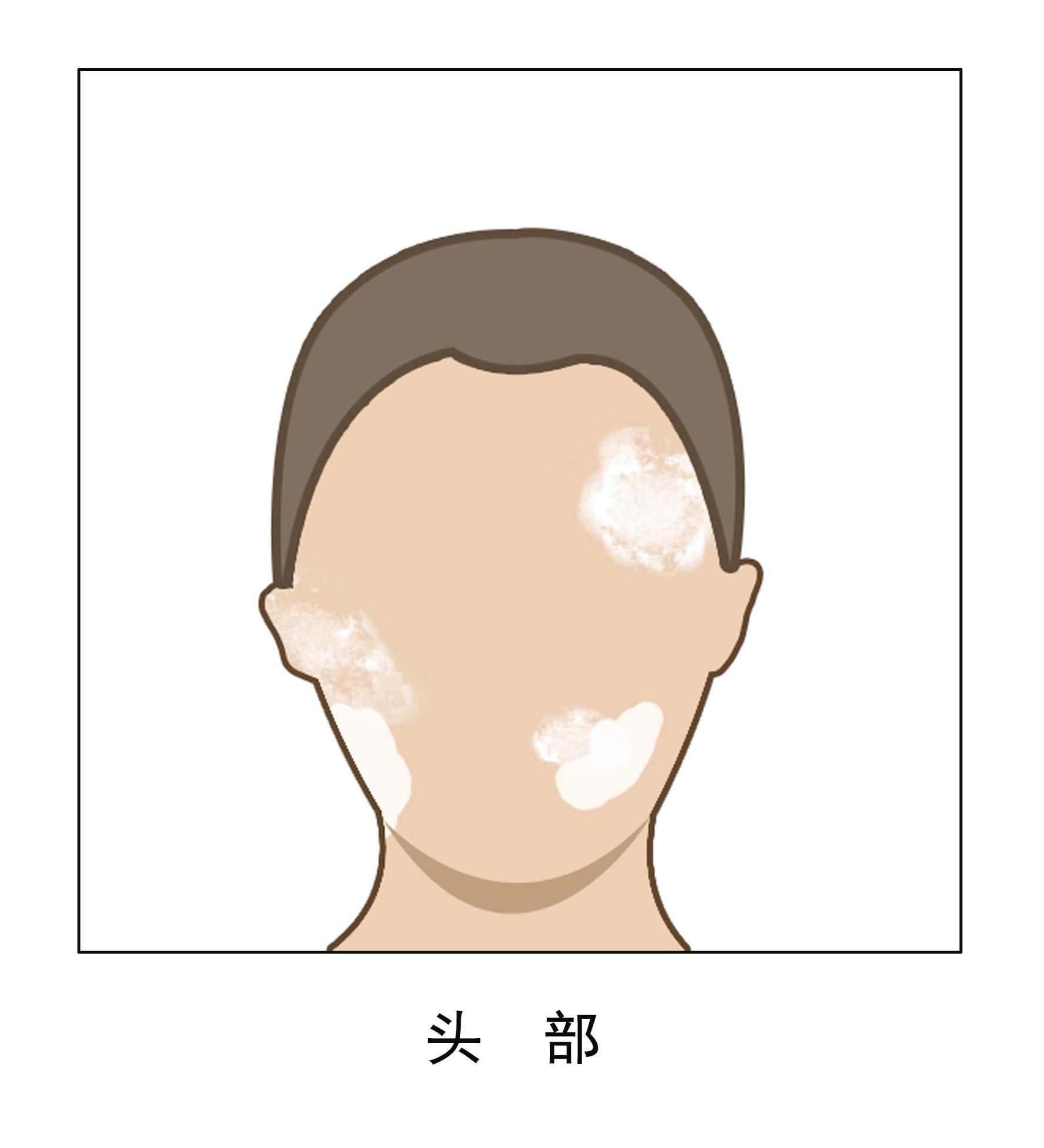 昆明白斑医院推毛春光:头部护理要注意些什么